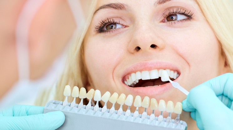 EDN_Corone dentali